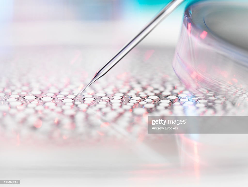 Stem cell research, nuclear transfer of embryonic stem cells used in cloning for medical research