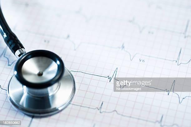 Stethoskop und Cardiogram