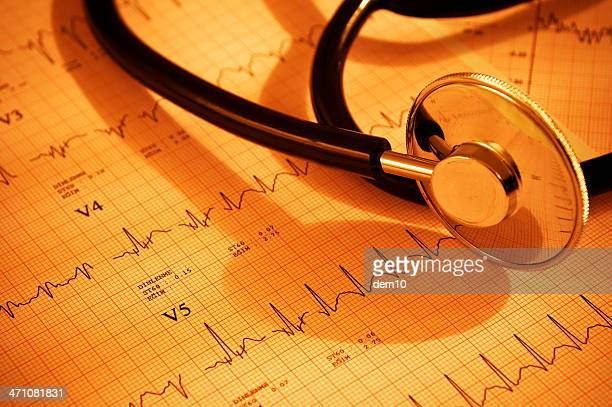Stethoscope and charts with heart ecg graph