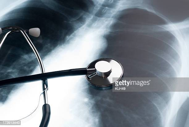 Stethoscope and Chest XRay