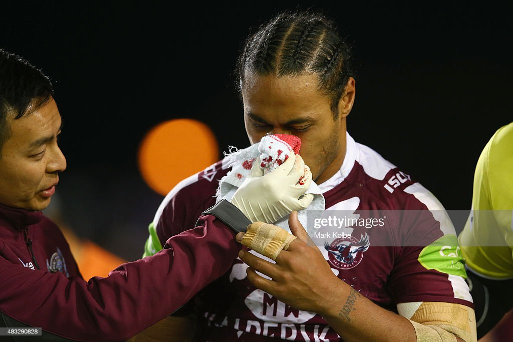 Steve Matai of the Eagles leaves the field with a bleeding nose during the round 22 NRL match between the Manly Sea Eagles and the South Sydney Rabbitohs at Brookvale Oval on August 7, 2015 in Sydney, Australia.