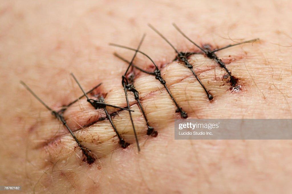 Stitches in Skin