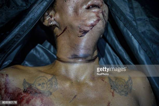 A strangle mark is seen on the neck of a man whose dead body was recovered at an isolated stretch of road in Navotas north of Manila Philippines June...