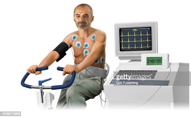 Stress test Test that measures the heartÍs electrical activity during periods of physical exertion