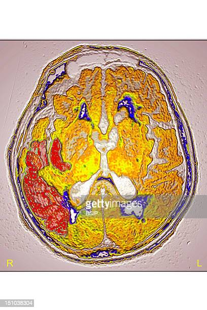 Stroke Due To Arterial Thrombosis In Right Hemisphere Ct Scan Of Brain Axial View