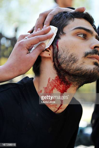 A student wounded during clashes with the police is treated by doctors during a demonstration at Scuola Superiore Sant'Anna on April 23 2013 in Pisa...