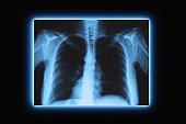 Studio shot of chest x-ray