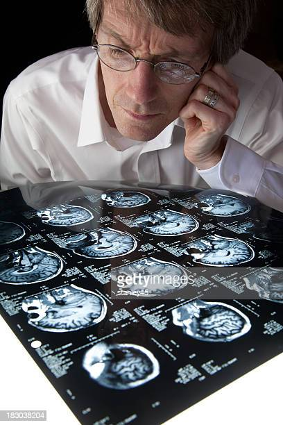 Studying an MRI brain scan