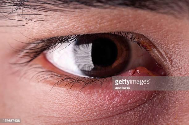 Stye - Eye Infection