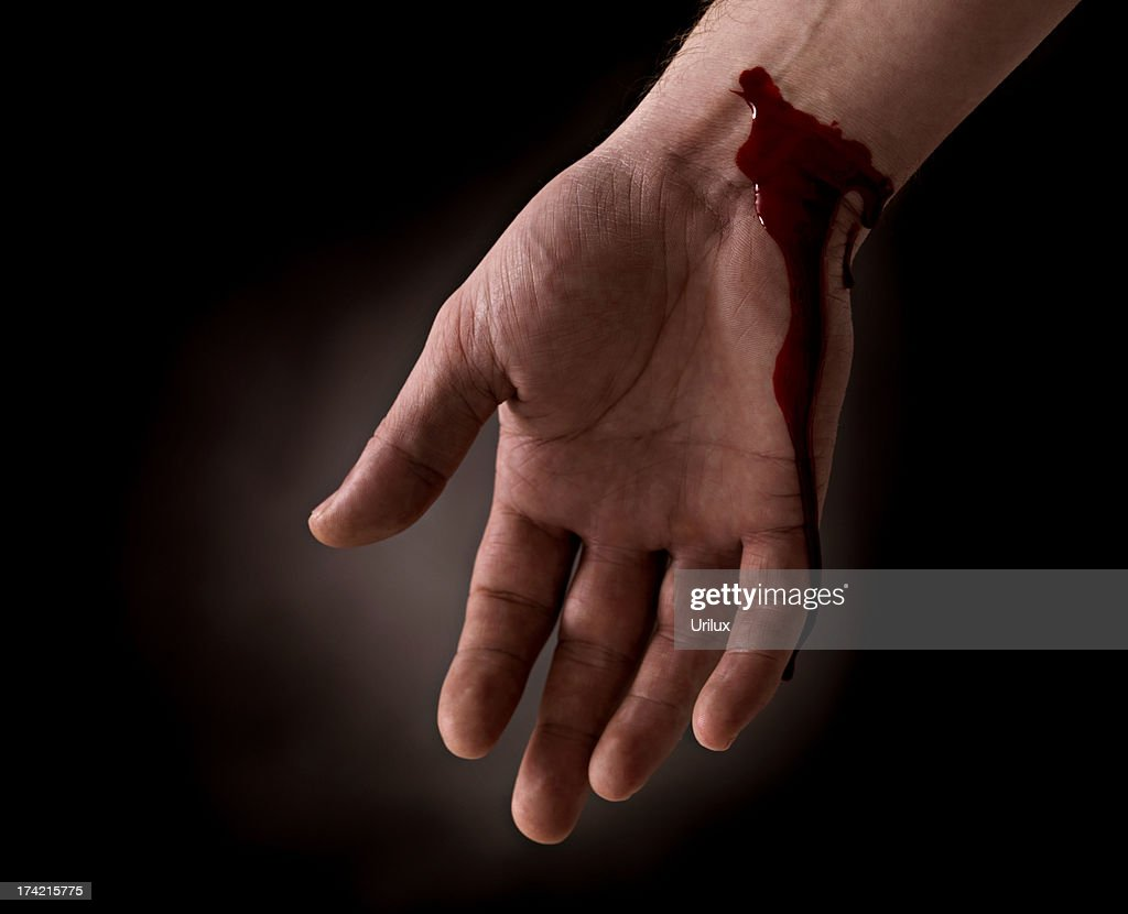Suicide Attempt Bleeding Wrist Of Human Hand Stock Photo ...