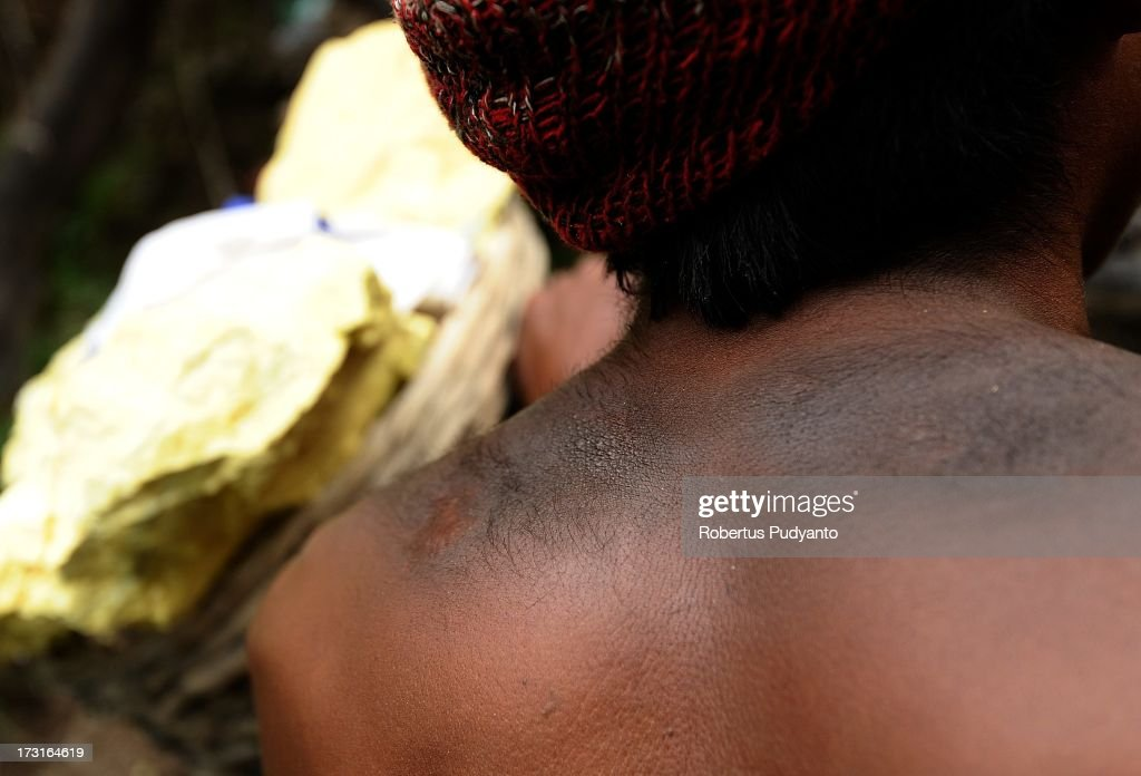A sulfur miner wounds and scar are seen on his back caused by carrying bags of sulfur on July 9, 2013 in Arjuna, Java, Indonesia. Ijen Crater, which is known as Kawah Ijen, is located in the Ijen Volcano region, bordered by Banyuwangi and Bondowoso in East Java Province, Indonesia. Ijen Volcano is 2,600 meters tall (8,660 ft), topped with a large caldera and a 200 meter deep lake of sulfuric acid. The quietly active volcano emits gases through fumaroles inside the crater, and local miners have tapped those gases to earn a living. Stone and ceramic pipes cap the fumaroles, and inside the sulfur condenses into a molten red liquid, dripping back down and solidifying into pure sulfur. Miners hack chunks off with steel bars, braving extremely dangerous gases and liquids with minimal protection, then load up as much as they can carry for the more than 3 kilometers to the weighing station. Loads can weigh from 50 to 90 kg (100 - 200 lbs), and a single miner might make as many as two or three trips return in a day. At the end of a long day, miners take home approximately Rp. 50,000. The sulfur is then used for vulcanizing rubber, bleaching sugar and other industrial processes nearby. Sulfur widely used in fertilizer industry, cosmetics, skin disease drug, insecticides, paper, paints, plastics, petroleum processing, rubber and tire industry, sugar industry, batteries, chemicals industrial, explosives, weaving, film and photography, and also in metal or steel industry.
