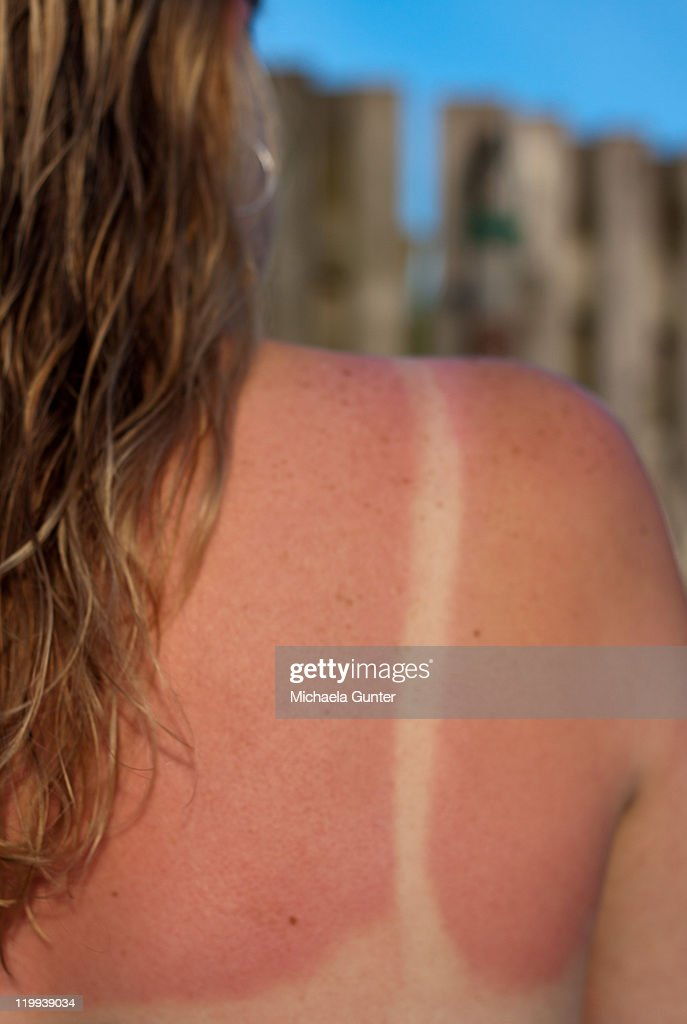 Sun burn : Stock Photo