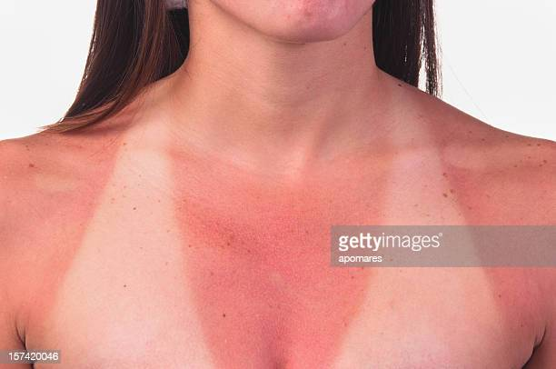 Sunburnt relief