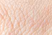Human skin super macro texture.