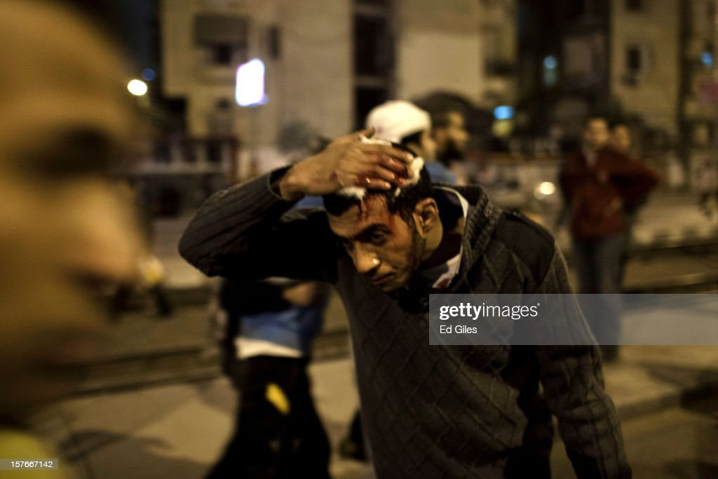 A supporter of Egyptian President Mohammed Morsi holds a bandage to his head after being injured in clashes with anti-Morsi protesters near Egypt's Presidential Palace on December 5, 2012 in Cairo, Egypt. Reports indicate at least two people were killed in the Cairo suburb of Heliopolis after thousands of protesters from groups both supporting and against President Morsi converged on the Presidential Palace on the evening of December 5, after large anti-government demonstrations in front of the palace on December 4. Anti-Morsi protesters continue to demonstrate across Egypt against the country's draft constitution, rushed through parliament in an overnight session on November 29. The country's new draft constitution, passed by a constitutional assembly dominated by Islamists, will go to a referendum on December 15. (Photo by Ed Giles/Getty Images).