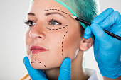 Close-up Of A Surgeon Drawing Perforation Lines On Young Woman's Face