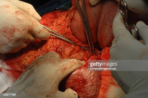 Surgeon removing enlarged spleen during surgery
