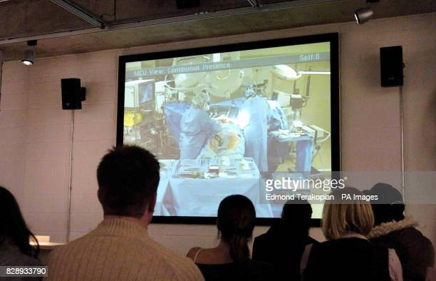 Surgeons perform an open heart bypass operation live from America as a curious audience of British medical enthusiasts watch the procedure on large...