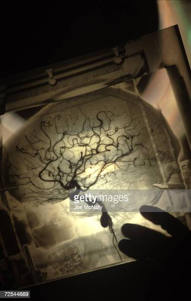 UNDATED Surgeons use an angiogram to find their way to the part of Tana Linkous' brain that causes her to have frequent seizures at the University of...
