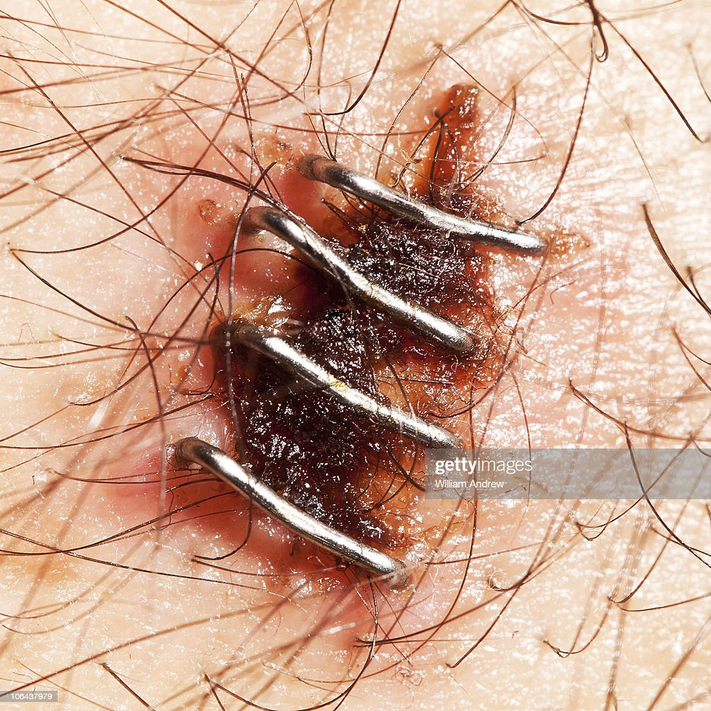 Surgery scar held together with staples : Stock Photo