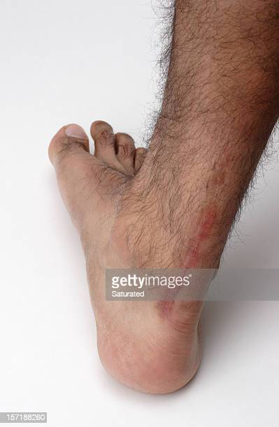 Surgical Scar From Achilles Tendon Injury