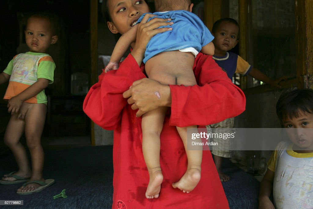 A suspected-polio-child Ramdhan, 7-months-old, is carried by her mother May 9, 2005 at Girijaya village, Sukabumi, Indonesia. Indonesian health authorities confirmed on May 6 that at least four cases of polio with some 15 cases of acute flaccid paralysis have been diagnosed in the West Java province. All cases were found in villages of the Sukabumi district, about 100 kilometres (62 miles) south of Jakarta. An epidemic of polio in Indonesia has broken out after ten years of being free of the disease. Indonesia is the 16th previously polio-free country to be reinfected in the past two years, including 13 in Africa, according to the United Nations health agency.