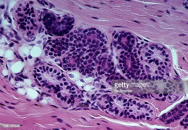 Sweat Gland from scalp, Human, 100X at 35mm. Located in the dermis of the skin.