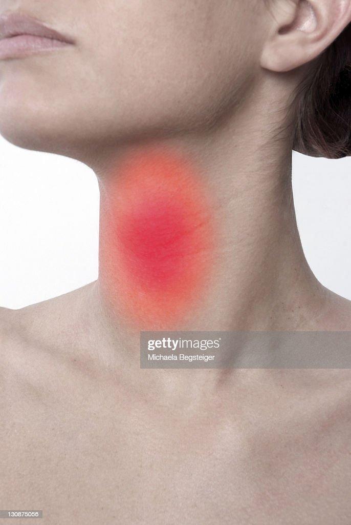 Symbolic for sore throat