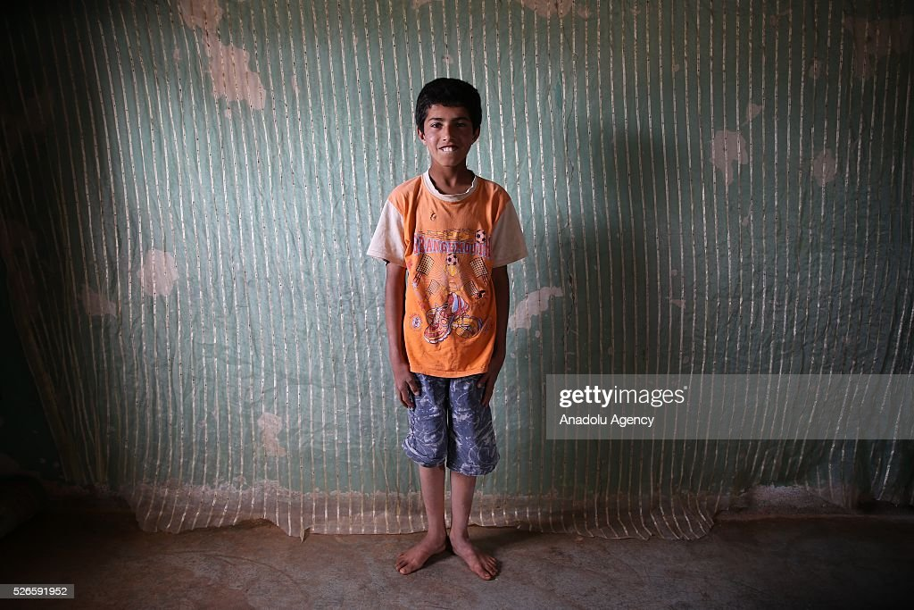 Syrian Abdullah Abdulkadir 13-year-old who has hearing loss which affect speech perception poses for a photograph in Turkey's Reyhanli district after fleeing to Turkey from Syrian civil war on April 30, 2016. Syrians, who lost their relatives, try to start a new life in Hatay's Reyhanli district where they took shelter after they fled the airstrikes carried out by the Assad regime forces.