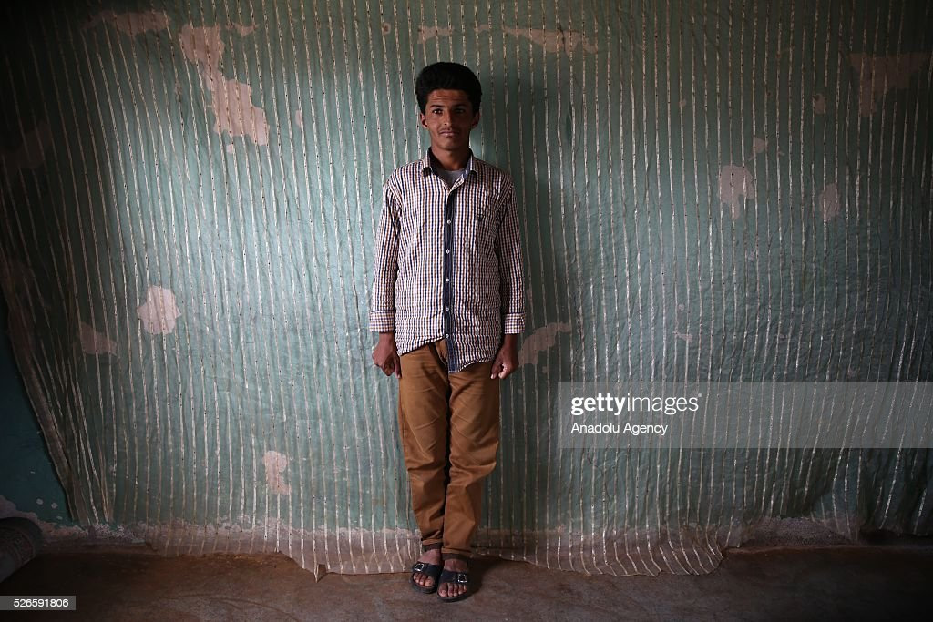 Syrian Abdurrahim Abdulkadir 19-year-old who has hearing loss which affect speech perception poses for a photograph in Turkey's Reyhanli district after fleeing to Turkey from Syrian civil war on April 30, 2016. Syrians, who lost their relatives, try to start a new life in Hatay's Reyhanli district where they took shelter after they fled the airstrikes carried out by the Assad regime forces.