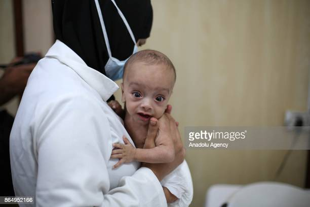 Syrian baby is seen in doctor's arms as him and other babies go through medical examinations due to malnutrition in deconflict zone of Eastern Ghouta...