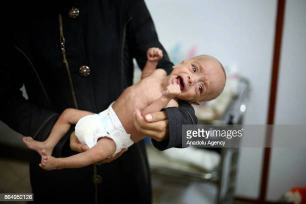 Syrian baby is seen on a woman's arms as him and other babies go through medical examinations due to malnutrition in deconflict zone of Eastern...