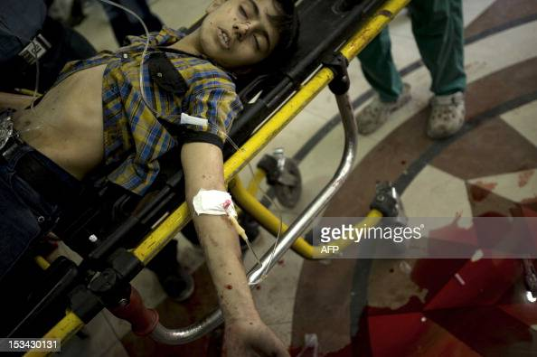 Syrian boy who is critically wounded in the shelling of a refugee center by government forces lies on a stretcher as medics prepare to amputate both...