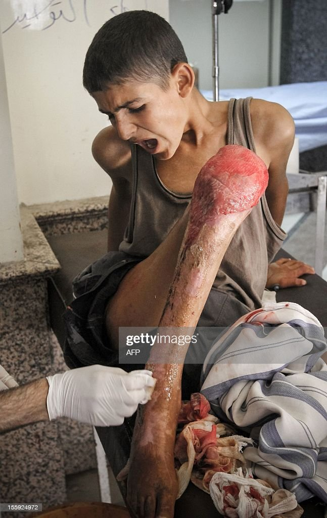A Syrian boy who was wounded in a fire that started after an artillery shell crashed into his home shouts in pain as a surgeon treats his burns in the northern Syrian city of Aleppo on November 8, 2012. More than 37,000 people have been killed since the outbreak of Syria's anti-regime revolt in March 2011, with over 1,000 dead in the past week, the Syrian Observatory for Human Rights said. AFP PHOTO/JOHN CANTLIE == GRAPHIC CONTENT ==