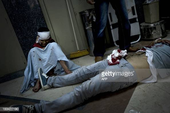 A Syrian boy wounded from shelling on a refugee center by forces sits near a dead body at the Dar alShifa hospital in the northern city of Aleppo on...