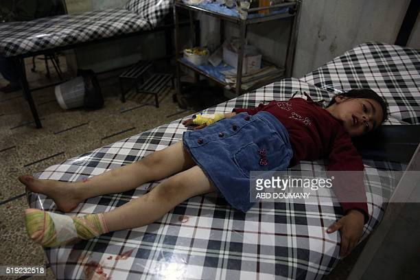A Syrian girl wounded during mortar shelling awaits treatment at a makeshift hospital in the rebelheld town of Douma on the eastern edges of the...