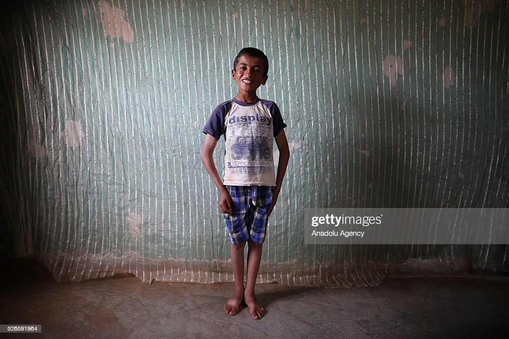 Syrian Hamza Kaddur 10-year-old who has hearing loss which affect speech perception poses for a photograph in Turkey's Reyhanli district after fleeing to Turkey from Syrian civil war on April 30, 2016. Syrians, who lost their relatives, try to start a new life in Hatay's Reyhanli district where they took shelter after they fled the airstrikes carried out by the Assad regime forces.