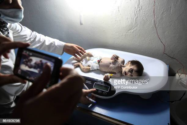 A Syrian infant suffering from severe malnutrition is being weighed at a clinic in the rebelcontrolled town of Hamouria in the eastern Ghouta region...