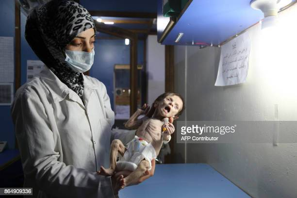 A Syrian infant suffering from severe malnutrition is carried by a nurse at a clinic in the rebelcontrolled town of Hamouria in the eastern Ghouta...