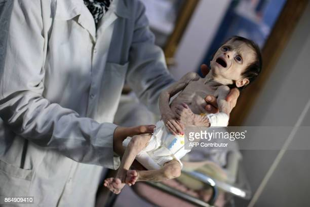 Syrian infant suffering from severe malnutrition is carried by a nurse at a clinic in the rebelcontrolled town of Hamouria in the eastern Ghouta...