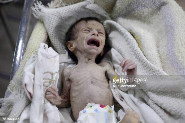 A Syrian infant suffering from severe malnutrition is seen at a clinic in the rebelcontrolled town of Hamouria in the eastern Ghouta region on the...