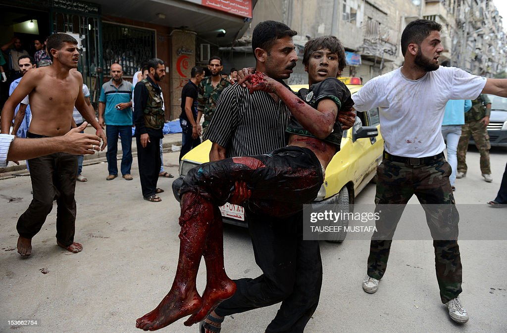 A Syrian man rushes a wounded civilian to a hospital following an air strike by regime forces in the northern city of Aleppo on October 8, 2012. A string of rebel bastions across Syria was rocked by regime shelling and clashes, as several army checkpoints also came under attack, with more than 60 people killed nationwide, a rights group said. AFP PHOTO/Tauseef MUSTAFA