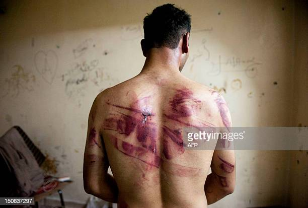 A Syrian man shows marks of torture on his back after he was released from regime forces in the Bustan Pasha neighbourhood of Syria's northern city...
