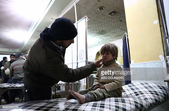Syrian man wipes the cheek of a young girl at a makeshift hospital following reported government airstrike on the rebelheld town of Douma on the...