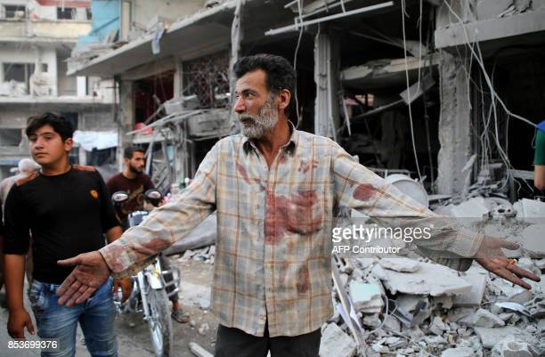 A Syrian man with a blood stained shirt gestures near debris following a reported Russian air strike in the district of Jisr alShughur in the Idlib...