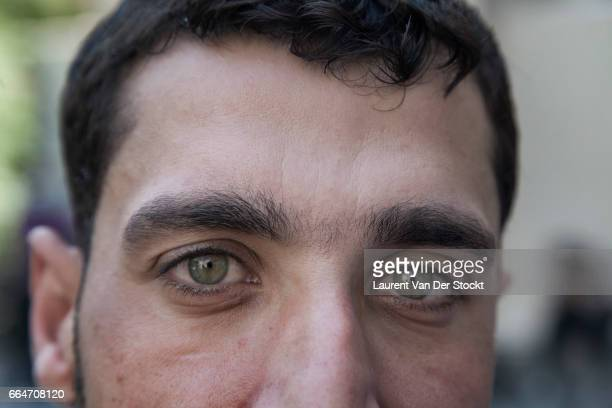 Syrian medical worker has irritated eyes after treating rebel fighters from Liwa Maghawer al Ghuta the day after a suspected chemical weapon attack...