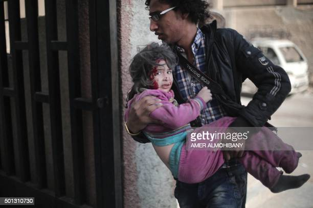 Syrian photographer carries an injured girl following reported air strikes by regime forces on the town of alNashabiyah in the eastern Ghouta region...