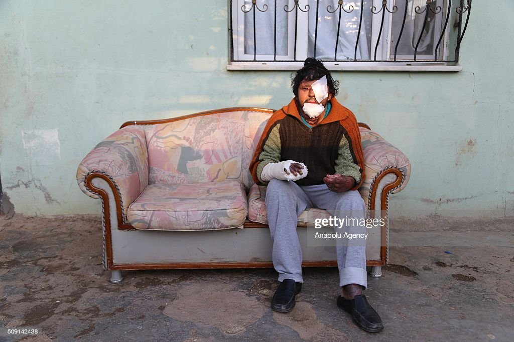Syrian refugee Ibrahim Isa Hassan (C) fled from Syria's Hama due to ongoing civil-war, poses at a house in Turkey's Syrian border city Hatay's Reyhanli District on February 08, 2016. Hassan had lost his left eye and had severe burnts due to Assad Regime's barrel bomb attack. Turkey spent US$ 8 Billion and hosts approximately 2 million refugees.