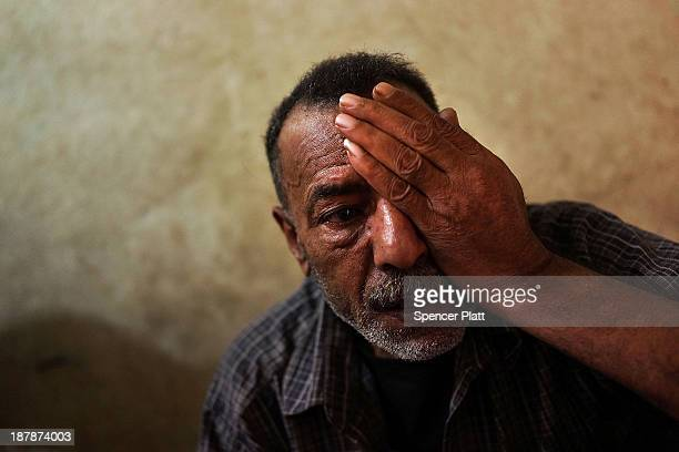 Syrian refugee Mohammed Hmayed holds a hand over an eye that was injured by shrapnel in a bombing in Syria in which he also lost a finger on November...