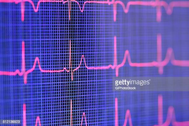 Tablet computer screen displaying an electrocardiogram